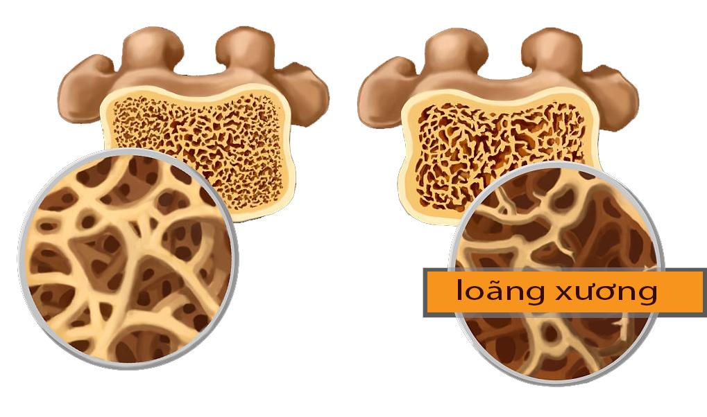 Bệnh loãng xương ở người trẻ tuổi có nguy hiểm không